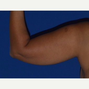 45-54 year old woman's arms treated with Smart Lipo before 2978404