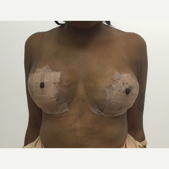 25-34 year old woman treated with Fat Transfer after 2736366