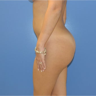 25-34 year old woman treated with Brazilian Butt Lift 1562484