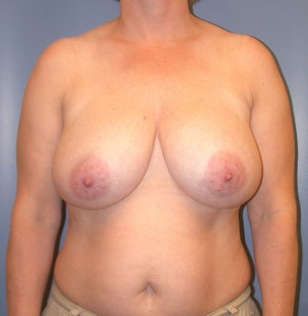 Breast Reduction DDD to C before 1320365