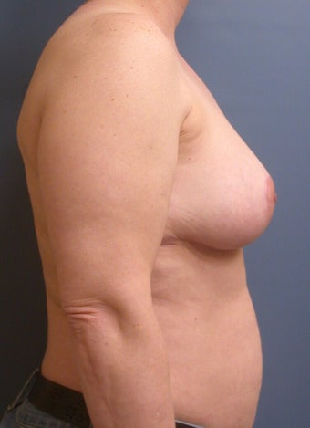 Breast Reduction DDD to C 1320365