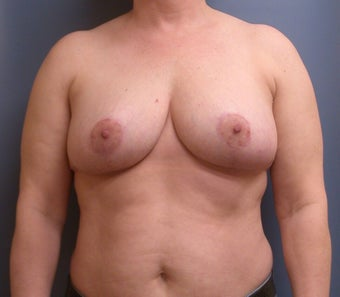 Breast Reduction DDD to C after 1320365