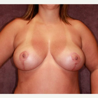 breast lift with implants after 2076239