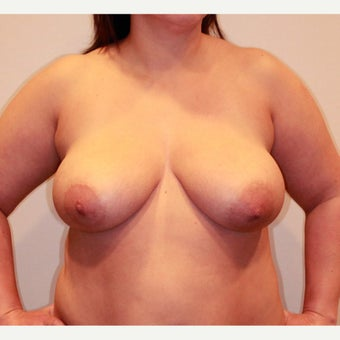 breast lift with implants before 2076239