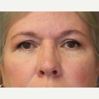 Eyelid surgery after 3071728