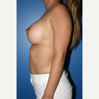 25-34 year old woman treated with Breast Augmentation after 3788754