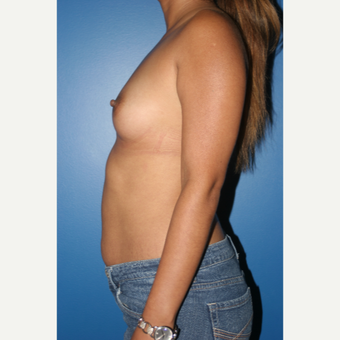 25-34 year old woman treated with Breast Augmentation before 3788754