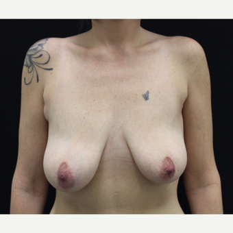 35-44 year old woman treated with Breast Lift with Implants before 3103881