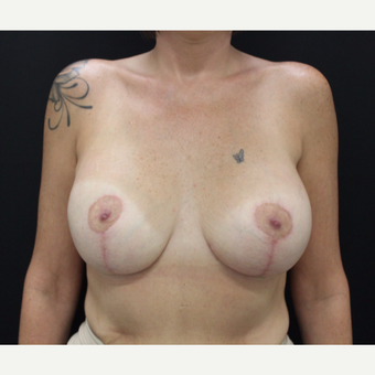 35-44 year old woman treated with Breast Lift with Implants after 3103881