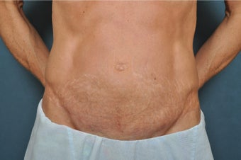 35-44 year old woman treated with Mini Tummy Tuck after 2864455