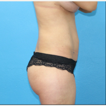 25-34 year old woman treated with Brazilian Butt Lift after 3380459