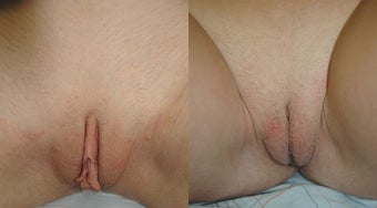 Labiaplasty before 3037833
