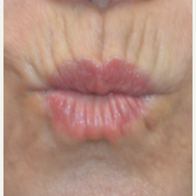 35-44 year old woman treated with Restylane Silk before 3445230