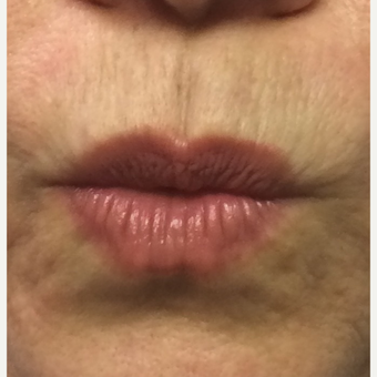 35-44 year old woman treated with Restylane Silk after 3445230