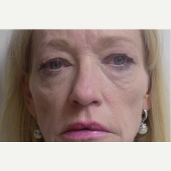 Eyelid Surgery before 3035996