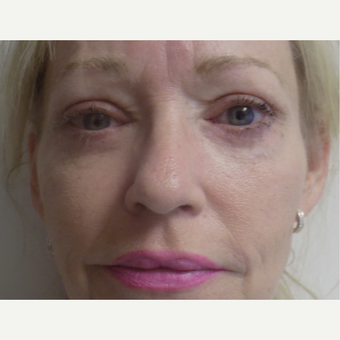 Eyelid Surgery after 3035996