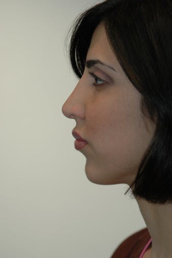 Rhinoplasty and Lip Injection after 292218