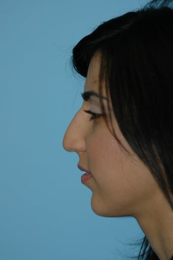 Rhinoplasty and Lip Injection before 292218