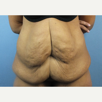 45-54 year old woman treated with Tummy Tuck before 3128738