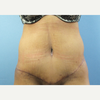 45-54 year old woman treated with Tummy Tuck after 3128738