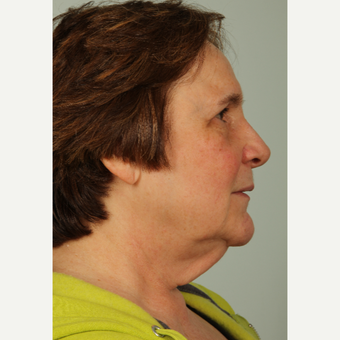 63 year old woman treated with Facelift before 3440242