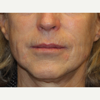65-74 year old woman treated with Liquid Facelift after 3502710