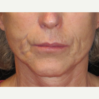 65-74 year old woman treated with Liquid Facelift before 3502710