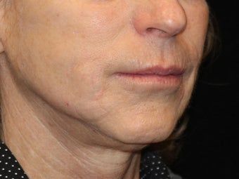 65-74 year old woman treated with Liquid Facelift 3502710