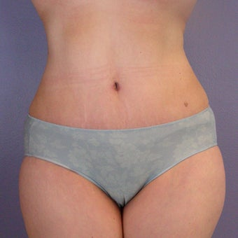 After Weight Loss Tummy Tuck after 280174