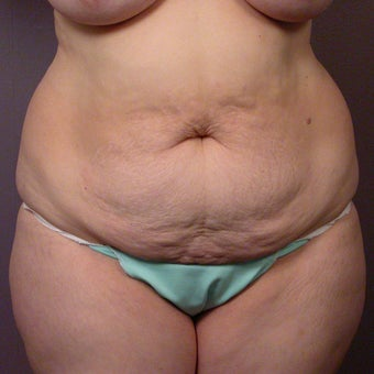 After Weight Loss Tummy Tuck before 280174