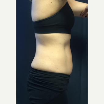 25-34 year old woman treated with SculpSure after 3168643