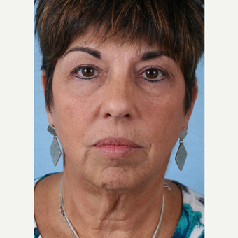 55-64 year old woman treated with Facelift before 3032752