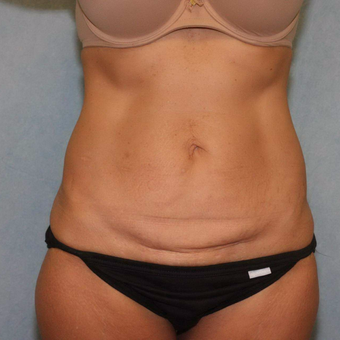 45-54 year old woman treated with Tummy Tuck before 3447505