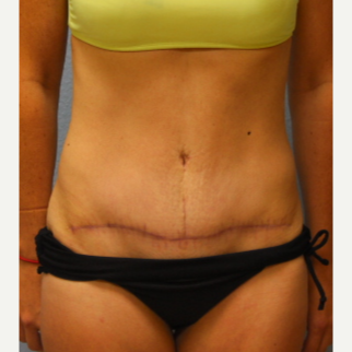 25-34 year old woman treated with Tummy Tuck after 3424088