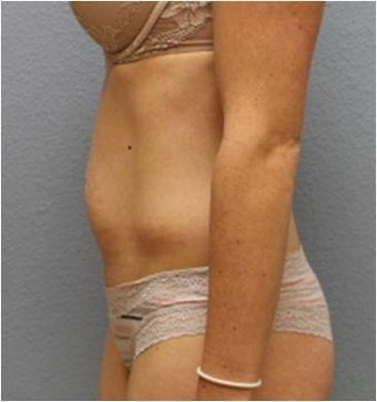 25-34 year old woman treated with Tummy Tuck 3424088