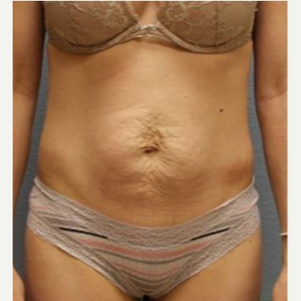 25-34 year old woman treated with Tummy Tuck before 3424088