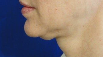 48 Year Old Female- Treated Lower Face before 877520