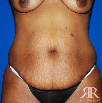 Tummy Tuck before 1810955