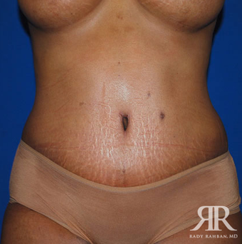 Tummy Tuck after 1810955