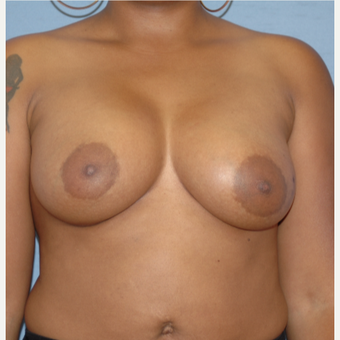 25-34 year old woman treated with Breast Augmentation after 3378438