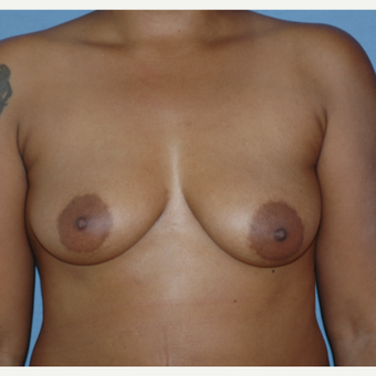 25-34 year old woman treated with Breast Augmentation before 3378438