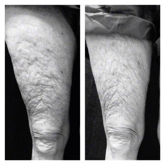 55-64 year old woman treated with Infini RF for improving leg skin laxity before 1937724