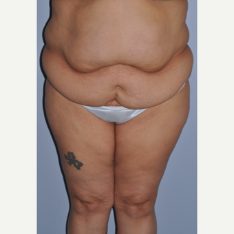 35-44 year old woman treated with Tummy Tuck before 3584275