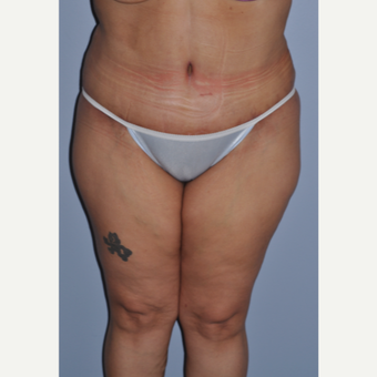 35-44 year old woman treated with Tummy Tuck after 3584275