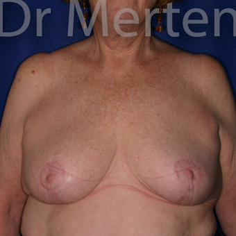 Breast Reduction after 3681189