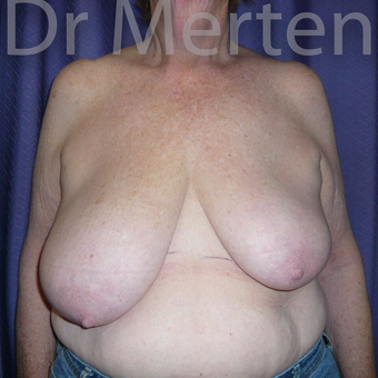 Breast Reduction before 3681189