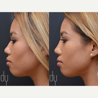 Non Surgical Nose Job before 3622613