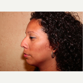 Rhinoplasty before 3319095