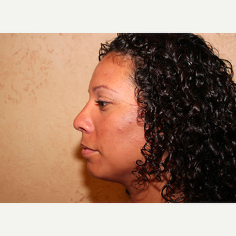 Rhinoplasty after 3319095