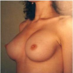 25-34 year old woman treated with Breast Augmentation after 3807331
